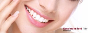 smile lines fillers