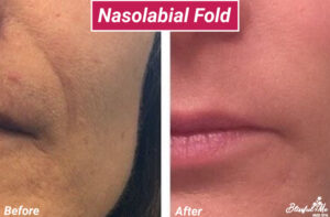 Nasolabial-fold